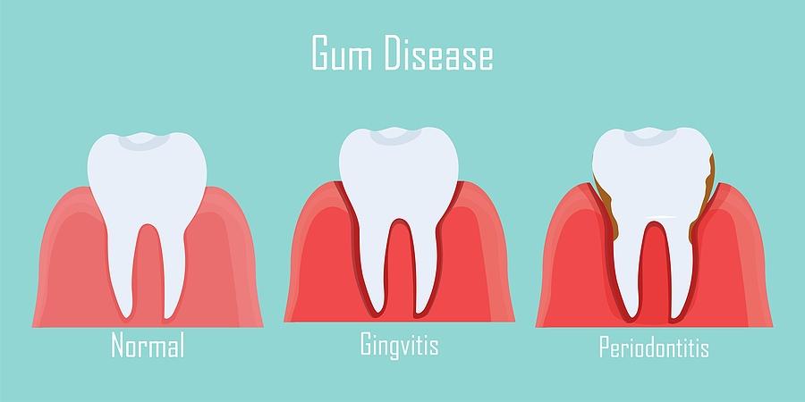 Gum Disease - Dr. Rick Mars